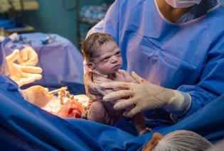 Απίστευτη εικόνα! Το νεογέννητο μωρό ρίχνει σκληρή ματιά στον γυναικολόγο, μόλις βγαίνει από την κοιλιά της μαμάς του - viral  - Κυρίως Φωτογραφία - Gallery - Video