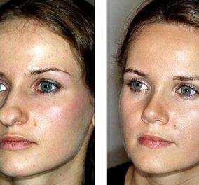 Η γυναίκα αυτή έκανε επιτυχημένη πλαστική στη μύτη της & έγινε κούκλα - δείτε το πριν & το μετά - Κυρίως Φωτογραφία - Gallery - Video