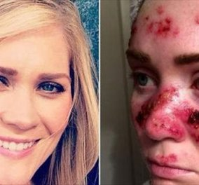 Απίστευτο story: Να πως γέμισε καρκινώματα στο πρόσωπο της που φοβίζει η όμορφη 27χρονη από το συχνό solarium - Κυρίως Φωτογραφία - Gallery - Video