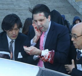 Επίθεση - σοκ με μαχαίρι στον πρέσβη των ΗΠΑ στη Νότια Κορέα - Χρειάστηκε 80 ράμματα στο πρόσωπο! (φωτό) - Κυρίως Φωτογραφία - Gallery - Video