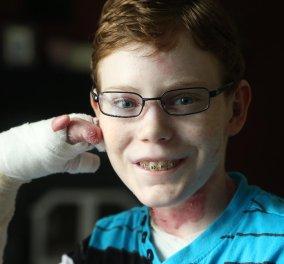 Το αγόρι - πεταλούδα που υποφέρει με το παραμικρό άγγιγμα (βίντεο) το σώμα του γεμάτο φλύκταινες   - Κυρίως Φωτογραφία - Gallery - Video