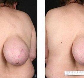Φριχτό! Αυτή η γυναίκα έχει ολόκληρο στήθος στην πλάτη της - Φώτο   - Κυρίως Φωτογραφία - Gallery - Video