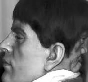 Vintage Horror Story: Κάποτε έζησε ένας τρομακτικός άνδρας με 2 πρόσωπα  - Στα 23 πέθανε μην αντέχοντας το διαβολικό δεύτερο  - Κυρίως Φωτογραφία - Gallery - Video