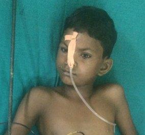 Ινδία: Αγοράκι έπεσε από στέγη και καρφώθηκε σε σιδηρόβεργα - Σώθηκε από θαύμα (Σκληρές εικόνες) - Κυρίως Φωτογραφία - Gallery - Video