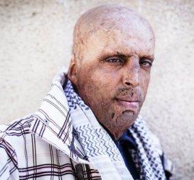 Η δραματική ιστορία & τρομακτική εικόνα του άνδρα που συνέβαλε στο ξέσπασμα της Αραβικής Άνοιξης & δεν πιστεύει πια στην επανάσταση   - Κυρίως Φωτογραφία - Gallery - Video