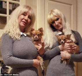 Τρελέγκω μητέρα έδωσε 40.000 λίρες σε πλαστικές για να είναι ίδια η κόρη της    - Κυρίως Φωτογραφία - Gallery - Video