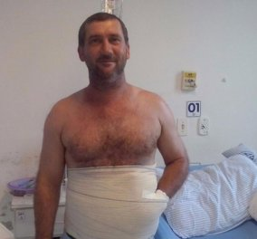 Οι γιατροί του έραψαν το τραυματισμένο χέρι μέσα στην κοιλιά του για να το σώσουν - Φώτο, βίντεο  - Κυρίως Φωτογραφία - Gallery - Video