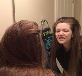 Μια γυναίκα δίνει μάχη με την βουλιμία εδώ και 18 χρόνια: Έχασε δόντια, μαλλιά και κάνει εμετούς - Φώτο, βίντεο  - Κυρίως Φωτογραφία - Gallery - Video