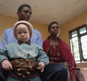 Σπαραγμός της μητέρας 9χρονου αλμπίνου: Τον θανάτωσαν γιατί φέρνει τύχη - Της ζήτησαν να αναγνωρίσει το κομμένο κεφάλι του  - Κυρίως Φωτογραφία - Gallery - Video
