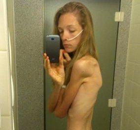 Φοιτήτρια έφτασε κοντά στον θάνατο από ανορεξία: Δημοσιεύει τις φώτο της για να παραδειγματιστούν οι συνομήλικοι της  - Κυρίως Φωτογραφία - Gallery - Video