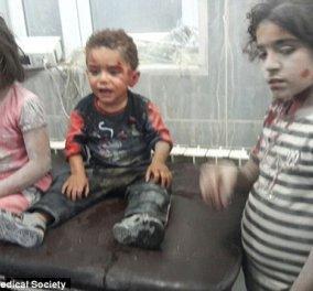 Συγκινητικό βίντεο: Ένα μικρό τραυματισμένο παιδί στη Συρία κλαίει και αρνείται να αποχωρήσει από την αγκαλιά του νοσηλευτή του - Κυρίως Φωτογραφία - Gallery - Video