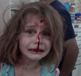 Θα στοιχειώνει τον 21ο αιώνα: «Πού είναι ο μπαμπάς μου;» βίντεο - Το κλάμα 8χρονης από τη Συρία μετά τους βομβαρδισμούς - Κυρίως Φωτογραφία - Gallery - Video