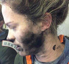 Συνταρακτική εικόνα: Κάηκε το πρόσωπο της όταν εξεράγησαν τα ακουστικά της μέσα στο αεροπλάνο  - Κυρίως Φωτογραφία - Gallery - Video