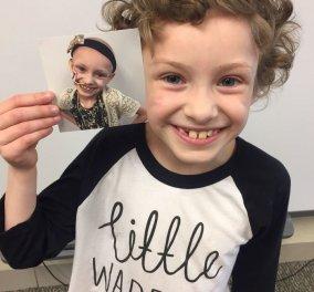 40 άνθρωποι νίκησαν τον καρκίνο & φωτογραφήθηκαν πριν και μετά την περιπέτειά τους - Κυρίως Φωτογραφία - Gallery - Video