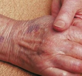 Έβαλαν Ελληνίδα να φυλάει τη γιαγιά με αλτσχάιμερ – την έδερνε τακτικά αλλά την έπιασαν - Κυρίως Φωτογραφία - Gallery - Video