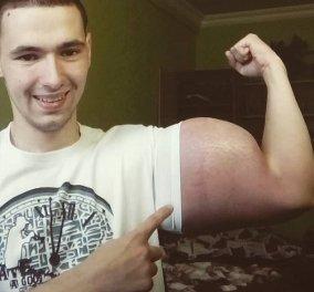 """Ωωωωχ! Δείτε πως έγινε Ρώσος μπόντιμπίλντερ με επικίνδυνες ενέσεις στο σώμα του για να... """"φουσκώσει"""" (ΦΩΤΟ) - Κυρίως Φωτογραφία - Gallery - Video"""