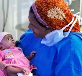 Την λένε Manushi, ζυγίζει μόλις 400 γραμμάρια, έχει εξαιρετικά λεπτό δέρμα & δεν μοιάζει σε τίποτα με τα υπόλοιπα μωρά (ΦΩΤΟ) - Κυρίως Φωτογραφία - Gallery - Video