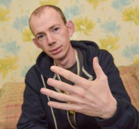 Φώτο: 26χρονος έγινε τύφλα στο μεθύσι: Ξύπνησε και είχε μισό δάχτυλο και αμνησία  - Κυρίως Φωτογραφία - Gallery - Video