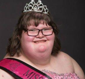 15χρονη ζυγίζει 170 κιλά μα στέφθηκε βασίλισσα της ομορφιάς! Η κοπελίτσα πάσχει από το σύνδρομο Prader - Willi (ΦΩΤΟ) - Κυρίως Φωτογραφία - Gallery - Video