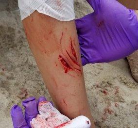 Επίθεση καρχαρία σε δυο έφηβους σε παραλίες της Νέας Υόρκης - Η πρώτη εδώ και 70 χρόνια (Φωτό & Βίντεο) - Κυρίως Φωτογραφία - Gallery - Video