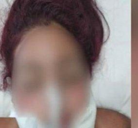 «Μαμά, δεν περίμενα να έρθεις»: Η 22χρονη που βιάστηκε, μίλησε στη μαμά της μόλις άνοιξε τα μάτια της - Κυρίως Φωτογραφία - Gallery - Video