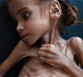 Παγκόσμια συγκίνηση: Η 7χρονη Αμάλ «έφυγε» από τη ζωή - Έγινε σύμβολο του λιμού στην Υεμένη - Κυρίως Φωτογραφία - Gallery - Video