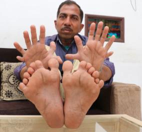 Αυτός ο άνδρας έχει 28 δάχτυλα! 14 στα χέρια, 14 στα πόδια! Και τι δουλειάκάνεινομίζετε; - Κυρίως Φωτογραφία - Gallery - Video