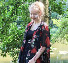 Story of the day: Η 17χρονη Νόα ζήτησε να υποβληθεί σε ευθανασία - Δεν άντεξε τον βιασμό της - Πως πέθανε (φώτο) - Κυρίως Φωτογραφία - Gallery - Video