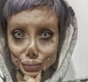 22χρονη έκανε άπειρες πλαστικές για να μοιάσει στην Αντζελίνα Τζολί -  Κατέληξε ζόμπι & συνελήφθη για βλασφημία στο Ιράν (φωτό) - Κυρίως Φωτογραφία - Gallery - Video