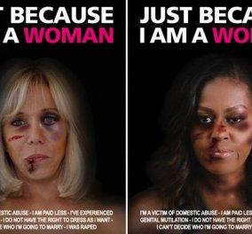 Μπριζίτ Μακρόν & Μισέλ Ομπάμα: Με πρησμένα & γεμάτα μώλωπες πρόσωπα - Συγκλονιστικό μήνυμα κατά της βίας των γυναικών - Κυρίως Φωτογραφία - Gallery - Video