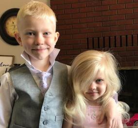 Story of the day: 6χρονος ήρωας έσωσε την αδερφή του από επίθεση σκύλου – Κατέληξε με 90 ράμματα - Κυρίως Φωτογραφία - Gallery - Video
