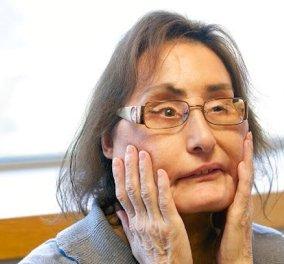 Έφυγε από τη ζωή η πρώτη Αμερικανίδα που έκανε μεταμόσχευση προσώπου (Φωτό) - Κυρίως Φωτογραφία - Gallery - Video