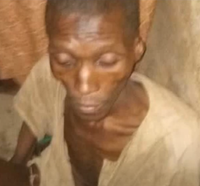Νιγηρία: 30χρονος βρέθηκε ετοιμοθάνατος σε γκαράζ - Οι γονείς του τον έβαλαν εκεί για 7 χρόνια  - Κυρίως Φωτογραφία - Gallery - Video
