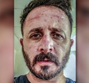 Συγκλονίζει γιατρός από την Κρήτη: «Τη μάσκα που αρνείσαι να φορέσεις, εμείς παρακαλάμε να την έχουμε» - Κυρίως Φωτογραφία - Gallery - Video