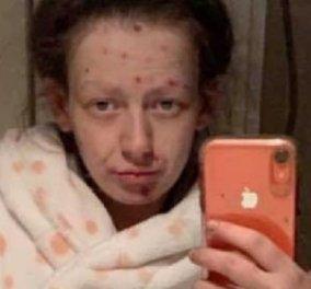 """Η ολική μεταμόρφωση μιας κοπέλας από ναρκομανή σε """"καθαρή"""": Η Demi είναι όμορφη χωρίς ηρωίνη (φωτό) - Κυρίως Φωτογραφία - Gallery - Video"""