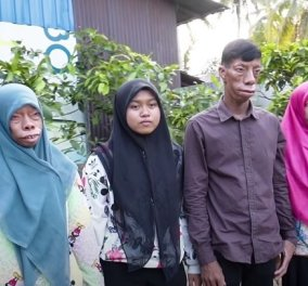 Story of the day: Τα μέλη οικογένειας στην Ινδονησία μετατρέπονται σε «τέρατα» - το γενετικό πρόβλημα ξεκινάει από τον πατέρα (βίντεο) - Κυρίως Φωτογραφία - Gallery - Video