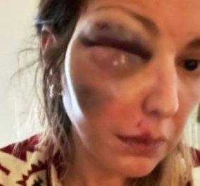 Σταυρούλα Τζαφέρη: «Δέχτηκα απειλές ότι θα μου κλείσουν και το άλλο μάτι» - τι είπε η food blogger που ξυλοκοπήθηκε (βίντεο) - Κυρίως Φωτογραφία - Gallery - Video