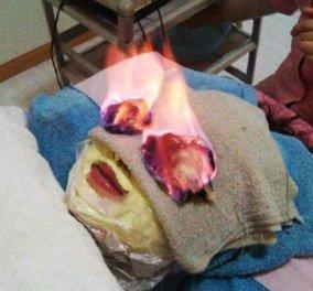 Αντιγήρανση με φωτιά - Γυναίκες... φλέγονται για να παραμείνουν νέες!  - Κυρίως Φωτογραφία - Gallery - Video