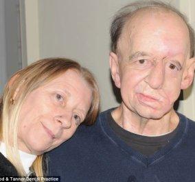 Τρομακτικές αλλά τόσο συγκινητικές οι φωτογραφίες ενός Άγγλου που ξαναέχει... πρόσωπο - Το είχε εξαφανίσει ο καρκίνος  (φωτογραφίες)  - Κυρίως Φωτογραφία - Gallery - Video