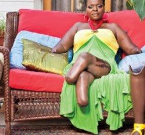 Φρικιαστικό: Mία πανέμορφη κοπέλα ήθελε τα τέλεια οπίσθια, αλλά κατέληξε δίχως πόδια! (φωτό) - Κυρίως Φωτογραφία - Gallery - Video