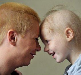 Ανακάλυψε πως η κόρη της έχει λευχαιμία με την βοήθεια του Google - Την ίδια στιγμή οι γιατροί έκαναν λόγο απλώς για μόλυνση στο αυτί της μικρής - Κυρίως Φωτογραφία - Gallery - Video