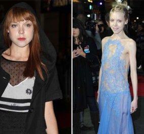 Σοκαριστικές εικόνες δύο ηθοποιών που έμειναν ''σκελετοί'' για τις ανάγκες των ρόλων τους - Κυρίως Φωτογραφία - Gallery - Video