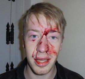 Σοκαριστική η φωτογραφία του Γερμανού νεαρού που έπεσε θύμα των ΜΑΤ - ''Εγώ απλώς καθόμουν σε μια γωνιά και με άρχισαν στο ξύλο''! - Κυρίως Φωτογραφία - Gallery - Video
