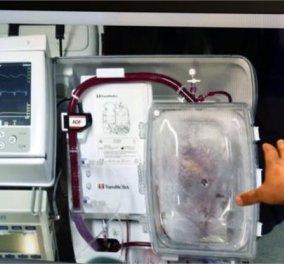 Story of the day: Στη μητέρα του Κώστα Γρίμπιλα η μεταμόσχευση της 1ης «νεκρής» καρδιάς στον κόσμο: Η 57χρονη Μισέλ Γρίμπιλα λέει πως αισθάνεται σαν 40χρονη! Τι έγραψε ο γιος της στο Facebook; - Κυρίως Φωτογραφία - Gallery - Video