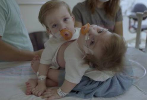 Story of the day: Δίδυμα 14 μηνών διαχωρίστηκαν με επιτυχία σε 11ωρο χειρουργείο – 24 γιατροί & νοσοκόμες για την επέμβαση - Κυρίως Φωτογραφία - Gallery - Video