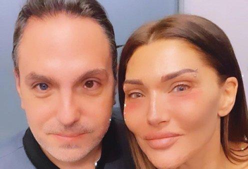 Αγγελική Ηλιάδη: Έκανε έντονες αλλαγές στο πρόσωπό της - Τα  αρνητικά σχόλια των θαυμαστών της (φωτό) - Κυρίως Φωτογραφία - Gallery - Video