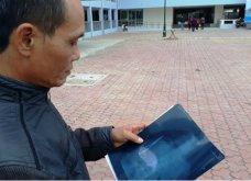 Απίστευτο! Αφαίρεσαν χειρουργική λαβίδα από την κοιλιά Βιετναμέζου - Την είχαν ξεχάσει από το 1998!  - Κυρίως Φωτογραφία - Gallery - Video
