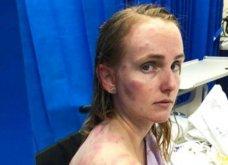 Η Φιόνα είναι η μάνα της χρόνιας: Έσωσε το μωρό της από το χαλάζι που τη σημάδεψε με μανία (Φωτό & Βίντεο) - Κυρίως Φωτογραφία - Gallery - Video