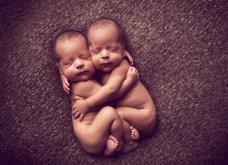 Τα δίδυμα που γεννήθηκαν αγκαλιασμένα - Κινδύνεψαν να πεθάνουν στην γέννα (βίντεο) - Κυρίως Φωτογραφία - Gallery - Video
